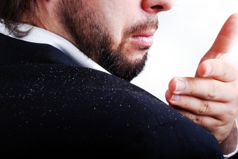 Dandruff – how to get rif off it