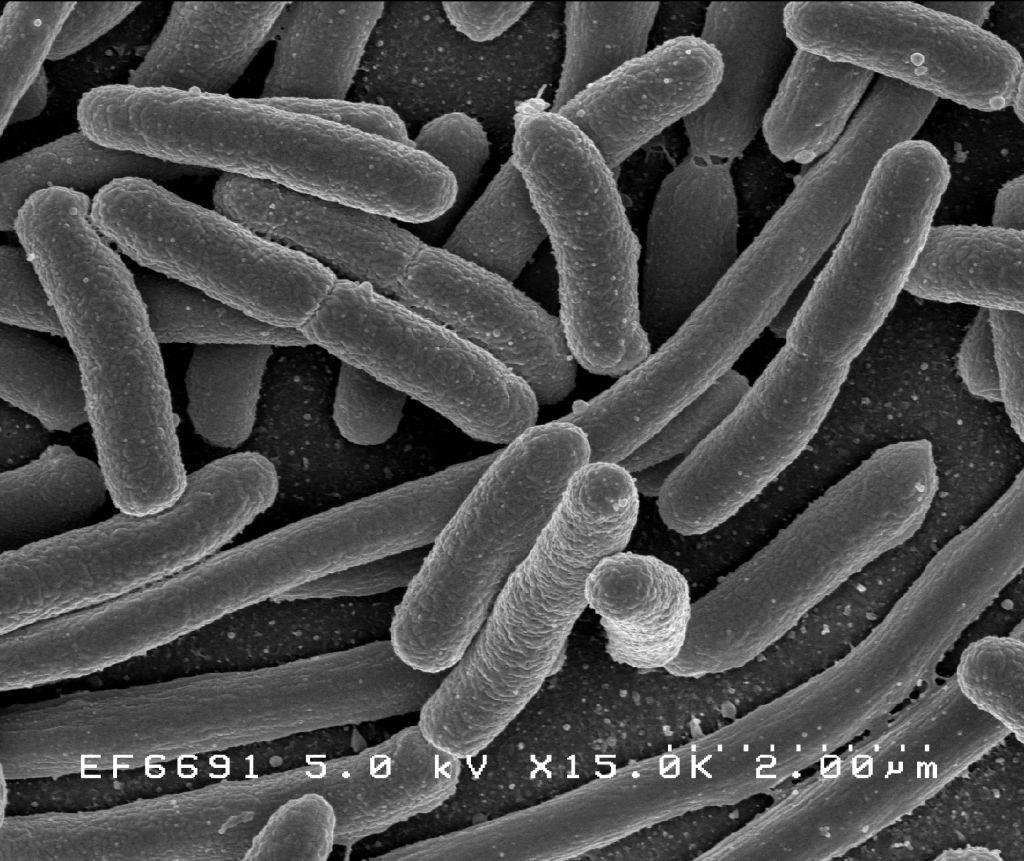 , How to treat E-coli