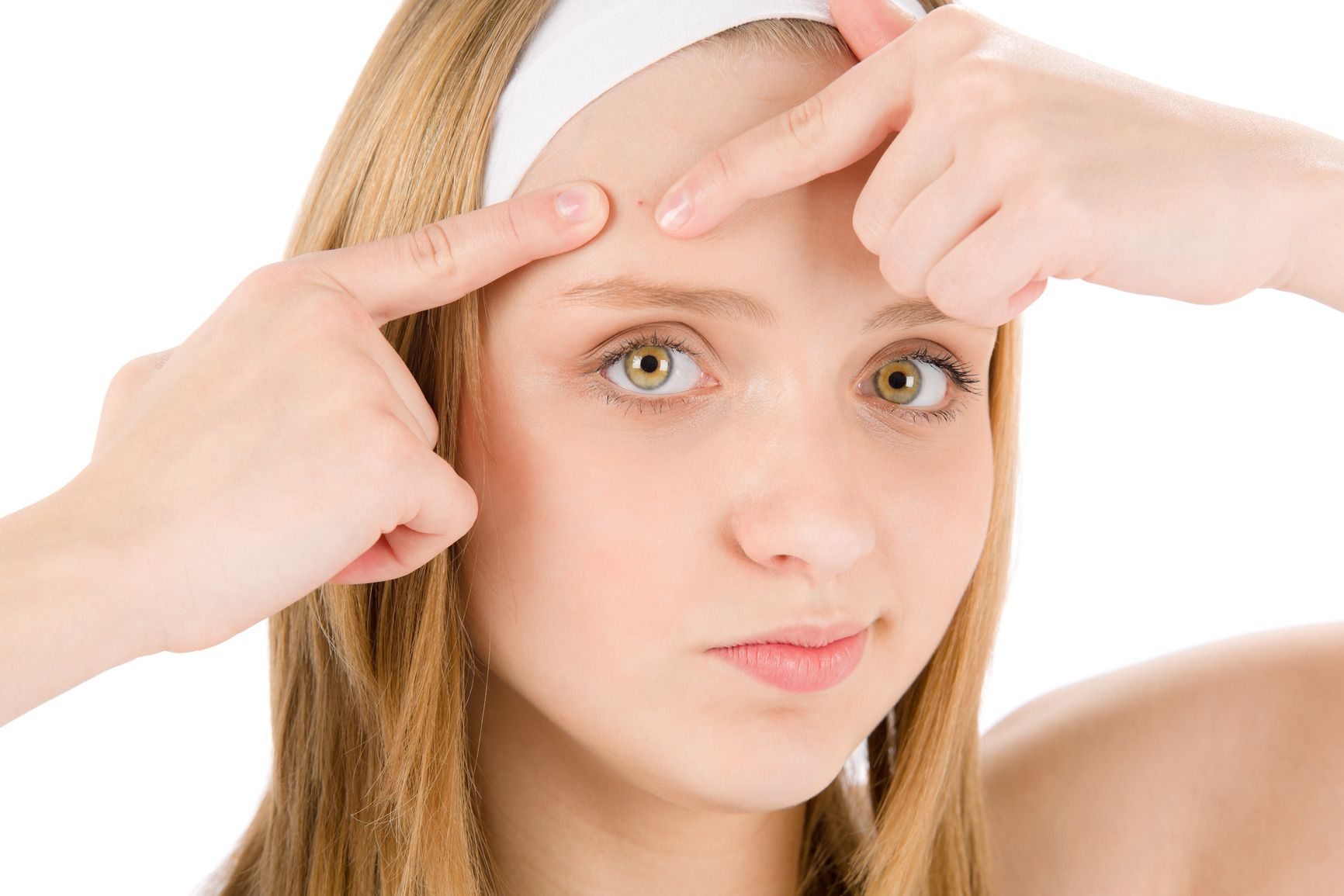 , Home intervention against acne