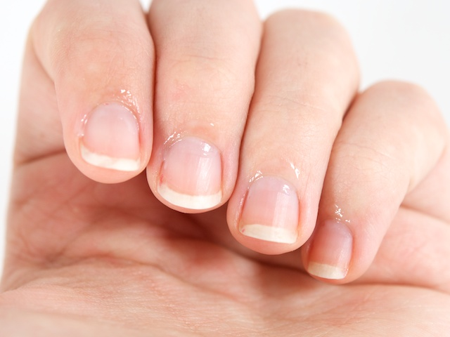How to help your sore cuticles