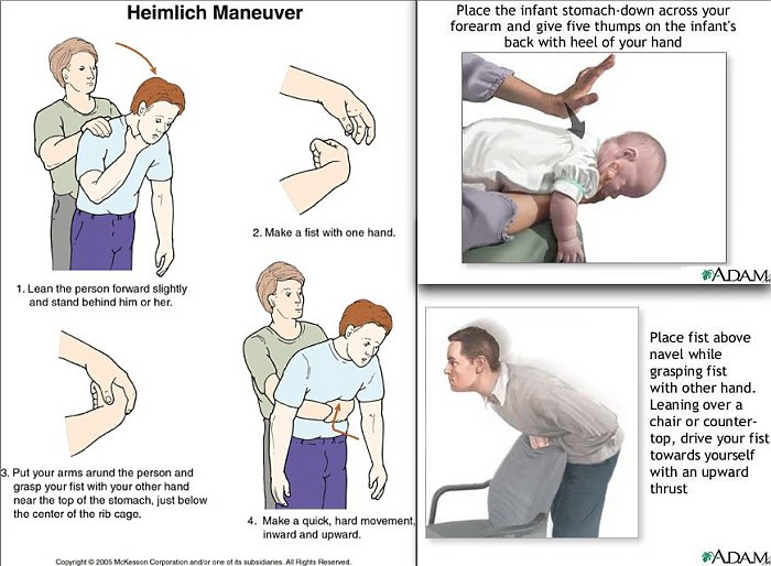 How to recognize chocking symptoms and apply Heimlich maneuver
