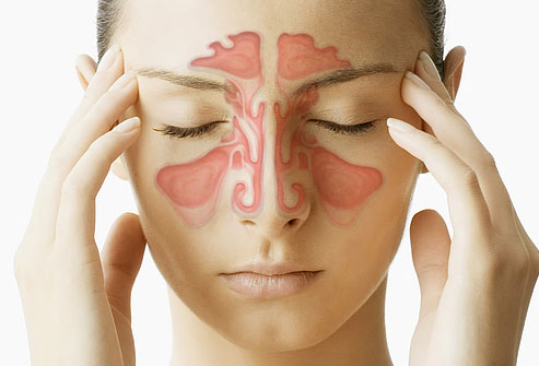 16 ingredients that can help you with sinusitis